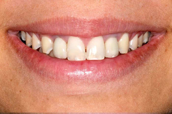 After-Имплантация зубов