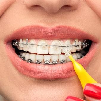 чистка зубов при наличии брекетов
