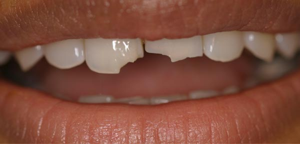 Before-Реставрация зубов
