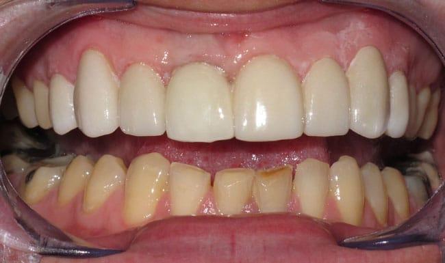 After-implantaziya perednih zubov