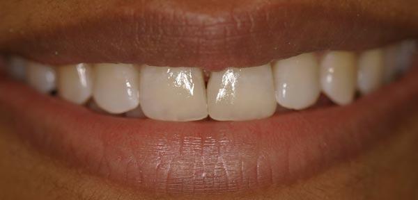 After-реставрация передних зубов 2