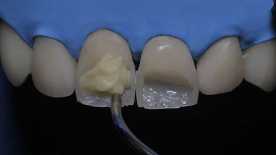 реставрация зубов цена москва