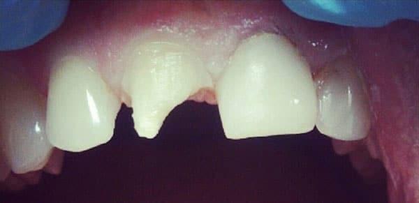 Before-Реставрация зубов 5