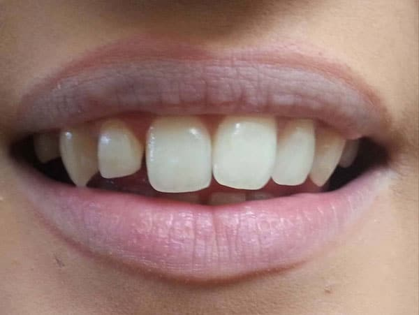 Before-реставрация передних зубов