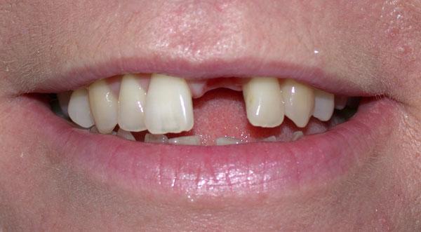 Before-Имплантация зубов