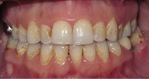 Before-снятие зубного налета 2