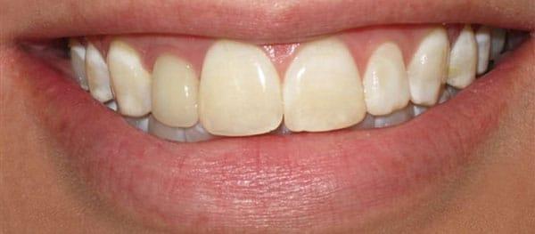 Before-снятие зубного налета