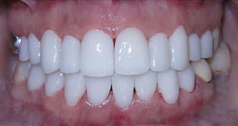 After-снятие зубного налета 2