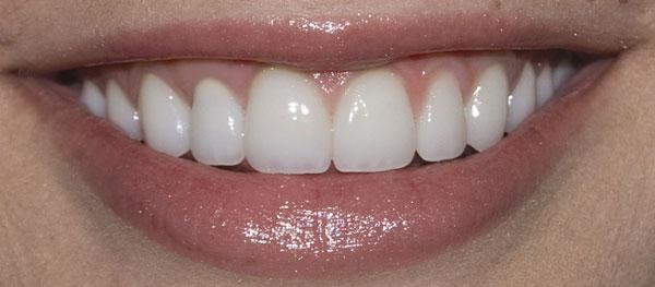 After-снятие зубного налета