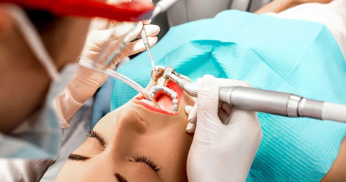 снятие зубного налета