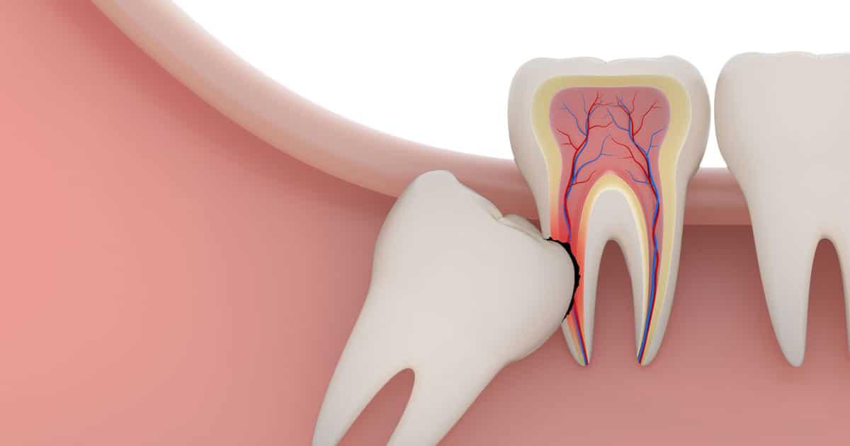 сложное удаление зуба мудрости на нижней челюсти