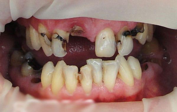 Before-CSM Implant