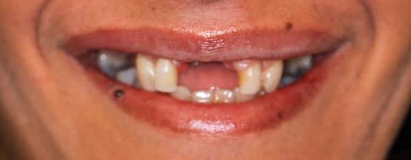 Before-Протезирование зубов 2