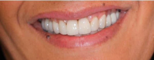 Протезирование зубов после