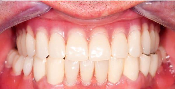 After-Протезирование зубов