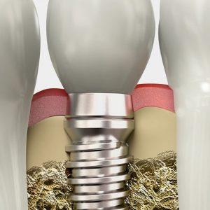 импланты CSM Implant