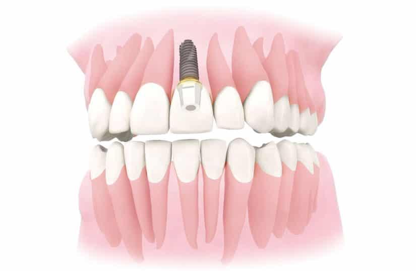 имплантация переднего зуба цена