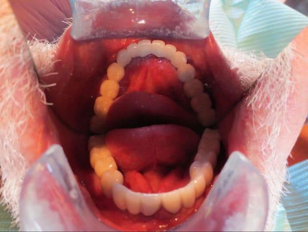 After-Корейские импланты Osstem (Осстем)2