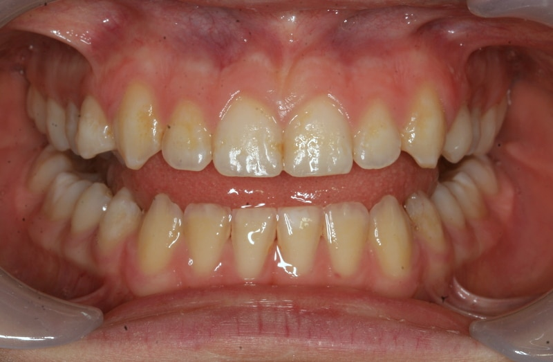 Гипоплазия эмали зубов - до