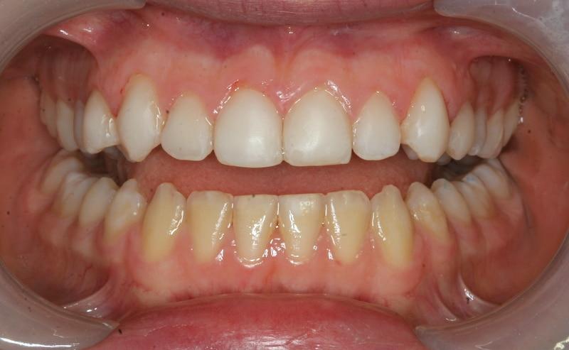 Гипоплазия эмали зубов - после