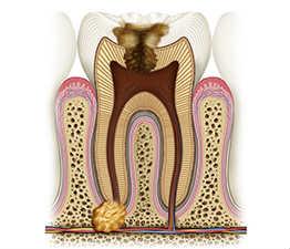 Цистэктомия - киста зуба