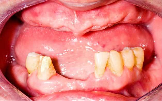 Before-Съемное протезирование зубов