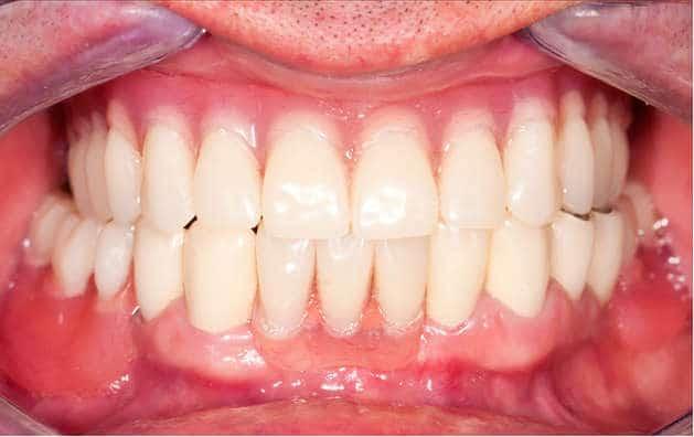 After-Съемное протезирование зубов