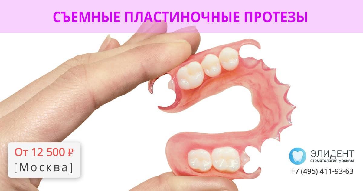 пластиночный протез