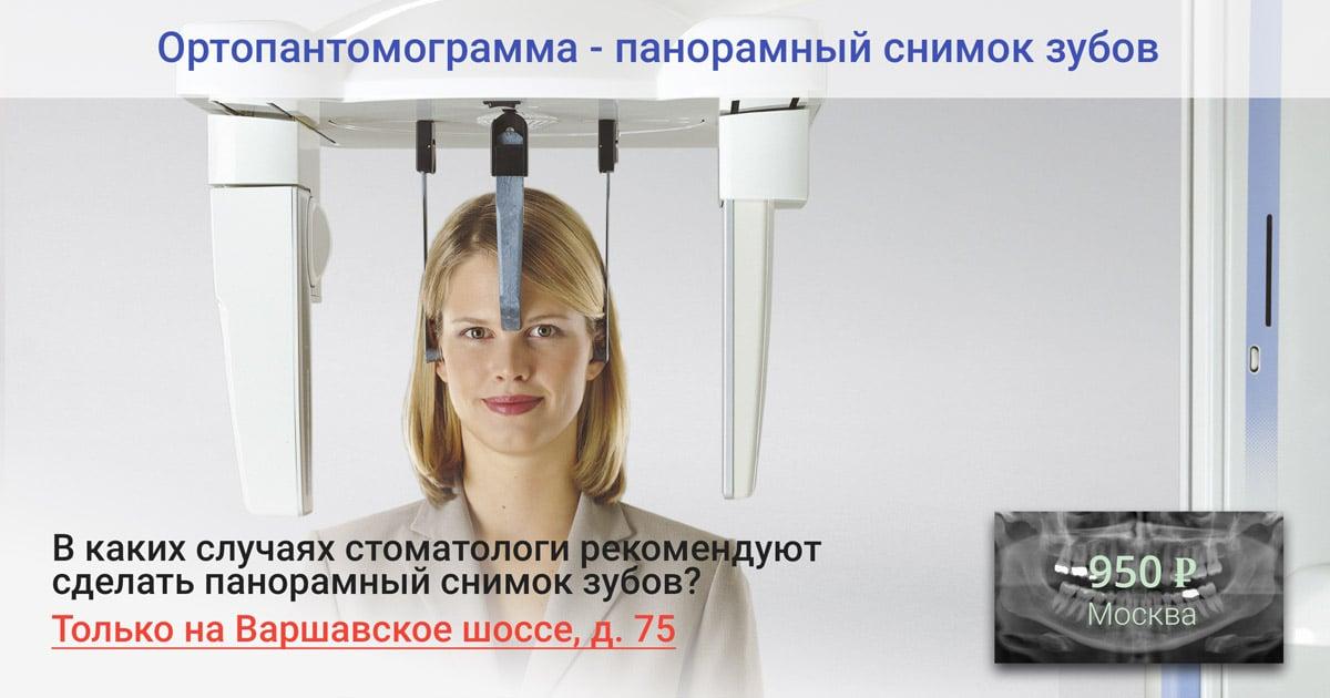 Ортопантомограмма — панорамный снимок зубов в Москве
