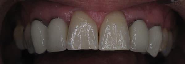 Керамические коронки фото до и после установки