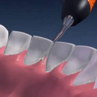 чистка зубов от зубного камня цена