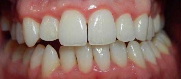 After-снятие зубного налета 4