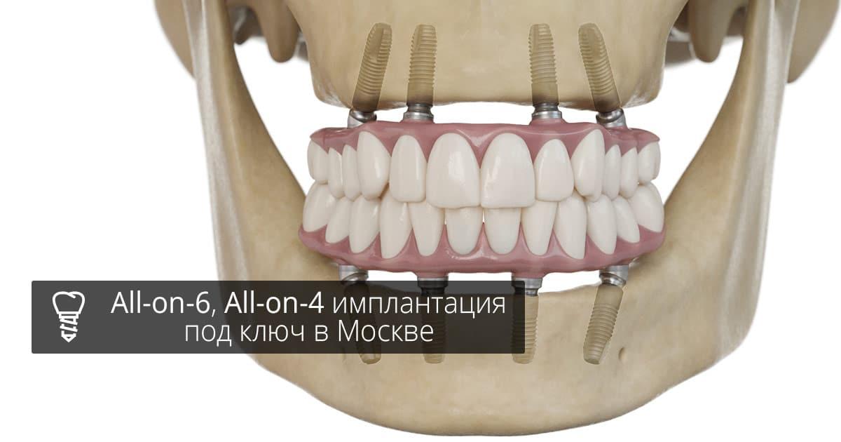 all-on-6, all-on-4 имплантация