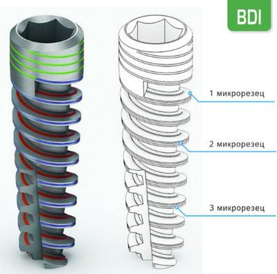 Биолайн импланты BDI