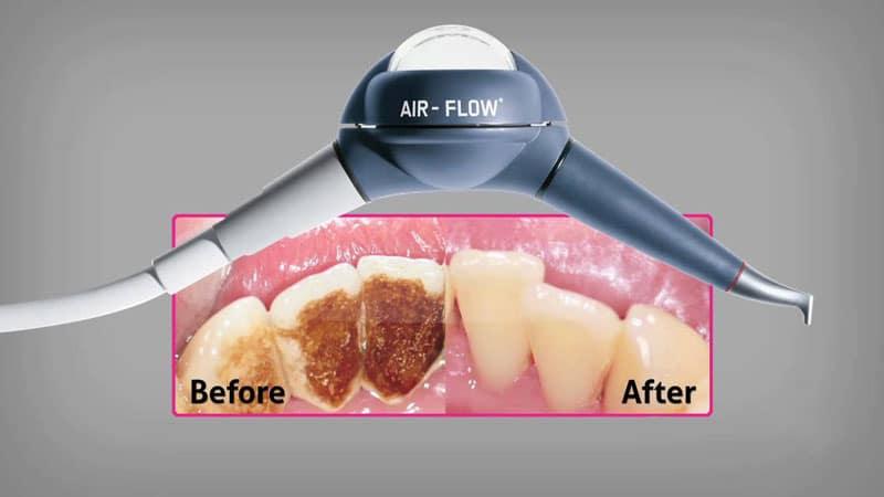 чистка зубов air flow отзывы
