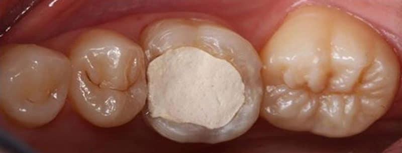 временная пломба на зуб