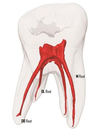 лечение пульпита трехканального зуба