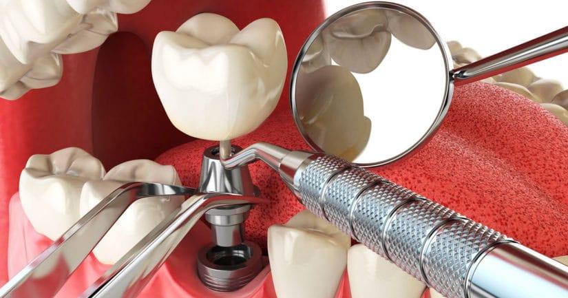 имплантация 1 зуба под ключ цена