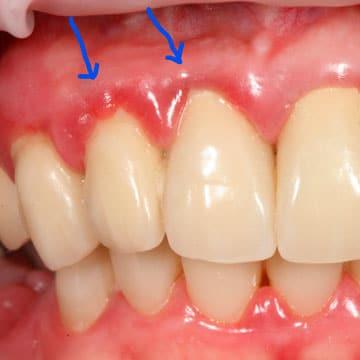 зуб воспалился лечение
