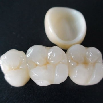 коронка на зуб из диоксида циркония
