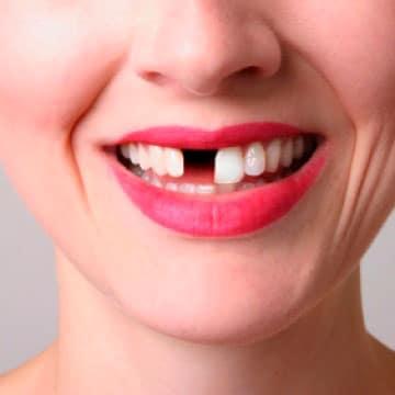 одномоментная имплантация переднего зуба