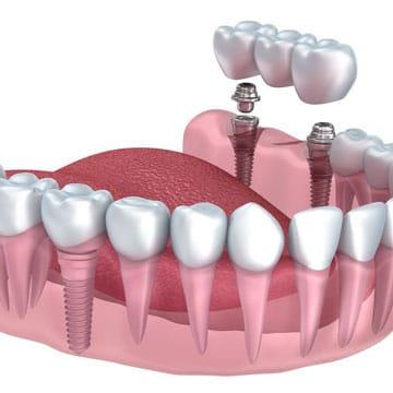 имплантация нескольких жевательных зубов