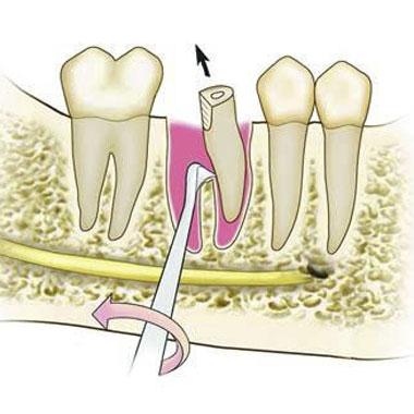 Простое удалением корня зуба