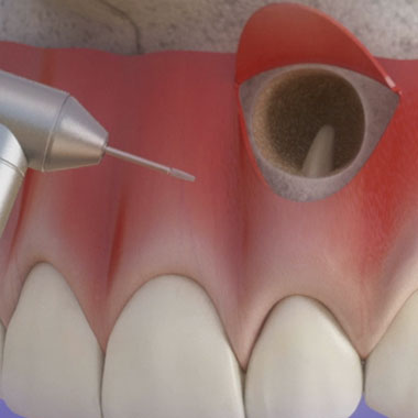 Удалением корня зуба без удаления зуба